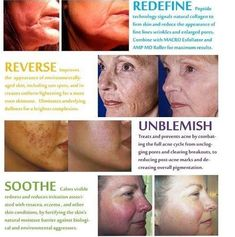Rodan + Fields...amazing results! Check it out @ beckybough.myrandf.com