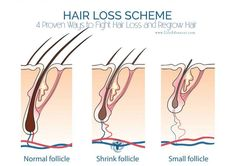 4 Proven Ways to Fight Hair Loss and Regrow Hair | via |@lifeadvancer | lifeadvancer.com