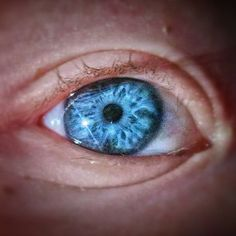 """This isn't a painting this is my sons actual eye. Blue and green-eyed children with Williams syndrome can have a prominent """"starburst"""" or white lacy pattern on their iris. Isn't it just spectacular!?!? There's a whole cosmos in there. #williamssyndrome #williamssyndromeawareness by richardjoliver"""