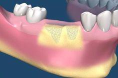 Understanding Dental Implant Bone Grafting