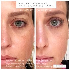 Rodan and Fields before and after Reverse redefine Lash Boost active hydration Serum lip Renewing Serum amp md Roller life changing skincare. Skin care at its best.