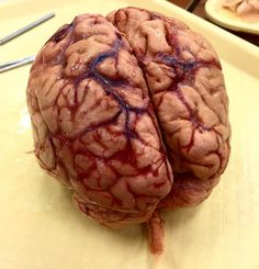 """How would you describe holding a brain in your hands for the first time in real time ? This is what one of our followers premed friends said: Today was the first time I held a Human brain in my hands. I've never been so completely speechless. I looked at some of my school mates expecting a similar reaction and they looked back at me confused like """"Hey! lets start trying to identify the structures."""" I had to take a step back and let it process...in my hands was someone's entire life. From start t Brain Anatomy, Medical Anatomy, Body Organs Diagram, Human Body Structure, Medical Icon, Look Back At Me, Anatomy Drawing, Confused, Chemistry"""