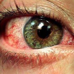 Gesprongen bloedvaten