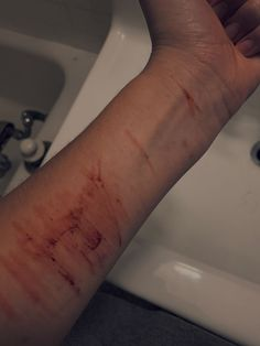 self harm is not a joke Cute Girl Photo, Girl Photo Poses, Aesthetic Boy, Aesthetic Grunge, Missing My Love, Hospital Pictures, Love Pain, Tumblr Me, I Hate My Life