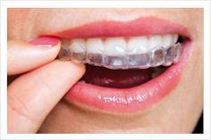 nobracks! Ortodoncia Invisible  Reemplazamos los tradicionales brackets metálicos, por modernos y transparentes alineadores que van corrigiendo tus dientes para lograr una posición adecuada y armónica.  Se ponen y sacan facilmente. Practicamente invisibles. Tratamiento sencillo.