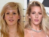#celebrity #goulding #plastic #surgery #scoopit #before,  #celebrity #goulding #Plastic #scoopit #Surgery Lip Injections, Makeup Blog, Plastic Surgery, Lips, Celebrity, Celebs, Famous People