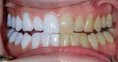 A dental crown is a tooth-shaped cap fitted over a tooth to cover it. Find porcelain crown near you in Houston TX at URBN Dental, Get help to improve your appearance of tooth and smile. Contact Us Today at Gum Health, Health Tips, Dental Crowns, Benefits Of Coconut Oil, White Teeth, Dental Care, Teeth Whitening, Zoom Whitening, Home Remedies