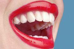 Mooie tanden in de rij. Heb jij die nog niet? Www.rechtetanden.nl Specialisten in orthodontie beugels voor volwassenen in. Amsterdam. Tandarts met 4 jaar officiele specialisten opleiding. Waarom zou je voor minder kiezen? Onze efficiente planning bespaart tijd en geld.