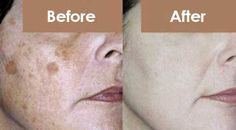 How to Get Rid of Dark Age Spots, Freckles & Wrinkles from Your Face