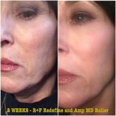 This is my teammates sisters results after just TWO WEEKS on Redefine and the Amp Md Roller and she looks amazing!!!
