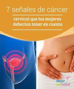 7 señales de cáncer cervical que las mujeres deberían tener en cuenta  El cáncer cervical es aquel que comienza en el cuello uterino, la parte inferior de la matriz que desemboca en la parte superior de la vagina.