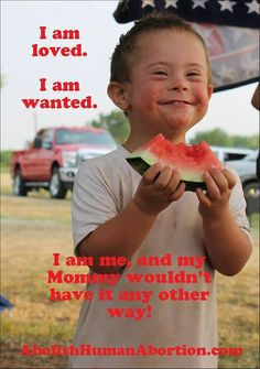Wanted and loved! Down syndrome awareness. This photo makes me so happy!