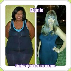 Ebonie lost 96 pounds with weight loss surgery