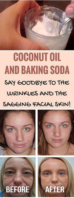 USE COCONUT OIL AND BAKING SODA AND LOOK 10 YEARS YOUNGER #coconutoil #bankingsoda #wrinkles #facial #skincare #skin #recipe #beauty #acne