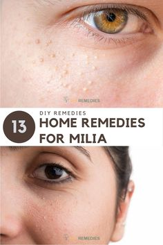 Home Remedies for Milia:Here are some simple yet effective remedies that naturally help you to get rid of milia. Regular follow up of these remedies along with skin care and a healthy diet will help you to overcome these milk spots on the skin. #Milia #Naturally #Womenbeauty #Remedies #DIYRemedies