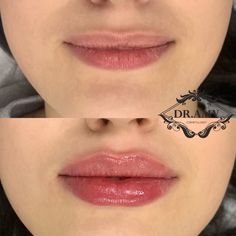 Lip Injections Juvederm, Botox Lips, Natural Lip Plumper, Natural Lips, Facial Procedure, Aesthetic Dermatology, Lip Augmentation, Lip Shapes, Lip Fillers