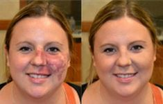 Camouflage Makeup for Tattoos - Cover Up Dark Circles, Birthmarks, Scars
