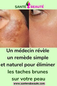 Beauty Tips For Face, Beauty Hacks, Cancer, Simple, Sport, Exfoliate Skin, Deporte, Beauty Tricks, Sports