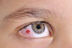 CENTRO ÓPTICO Juan Ramón TENA: El #hematoma ocular.  http://ow.ly/MwPO5   #derrame #presiónOcular