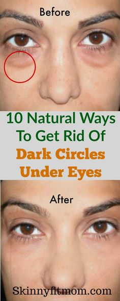 Dark circles can spoil make-up made for hours. Use the following natural ways to get rid of dark circles under the eyes fast. #darkcircles #naturalremedies