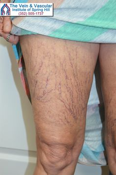 Spider veins like these should not be ignored because they can be an indication of deep venous insufficiency that can eventually lead to chronic leg pain, varicose veins and swelling of the legs. To learn more about spider veins, visit:  https://www.veinandvascularofspringhill.com/service/spider-vein-treatment/  #SpringHillSpiderVeins #SpiderVeinTreatmentSpringHill #SclerotherapySpringHill