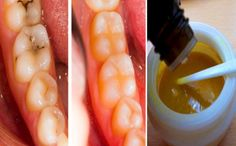 REVERSE CAVITIES NATURALLY AND HEAL TOOTH DECAY WITH THIS POWERFUL TOOTH MASK!