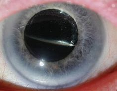 Nitrous oxide inhalation anaesthesia in the presence of intraocular gas can cause irreversible blindness. British Dental Journal http://www.nature.com/bdj/journal/v204/n5/full/bdj.2008.158.html