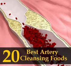 20 Best Artery Cleansing Foods | Health & Natural Living