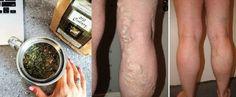 Najbolji prirodni lijek za proširene vene i bolove u nogama! (RECEPT)