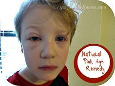 Eyes on the Source...Natural Pink Eye and Allergy Eye Remedy~ Honey Eye Wash | Eyes on the Source...