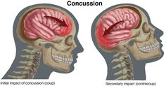 In the past few years, concussion has received a great deal of attention as people in the medical and sports worlds have begun to speak out about the long-term problems associated with this injury. The Centers for Disease Control estimate that in sports alone, more than 3.8 million concussions occur each year. Recent scientific evidence highlights the need for proper care to prevent complications from concussion.
