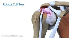 Physical therapy plays an important role when healing from a rotator cuff tear. Read about several exercises you may encounter on your road to recovery.