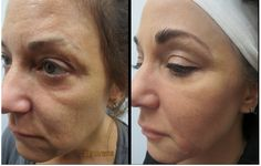 View these Juvederm Voluma XC before and after pictures at Look Younger MD. These pictures will help you to find out the best cosmetic surgeon Dr. Garry Lee in Las Vegas. Read the information here in the link...