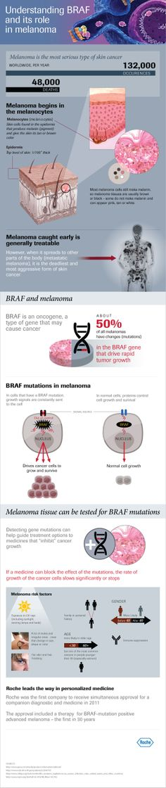 Understanding BRAF and its role in melanoma. http://molecular.roche.com/diseases/Pages/Understanding-BRAF-role-in-advanced-melanoma.aspx