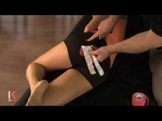KT Tape: Piriformis syndrome