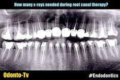 x-rays-endodontics