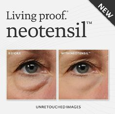 Pair our latest offering with some of our favorite treatments for a complete eye transformation, just in time for the holidays! Your choice: Pelleve or eMatrix 3 Full Face Treatments + 3 Neotensil Applications $699 - over $1300 savings! **November 2014**