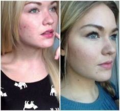 Acne And Oily Skin Get Rid Of Your Acne For Good! Acne is a nightmare cosmetic problem for sure. Many acne patients somet. Beauty Care, Beauty Skin, Beauty Hacks, Face Beauty, Natural Beauty Tips, Natural Skin Care, Acne Treatment, Skin Treatments, Luscious Hair