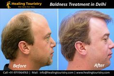 Baldness Treatment in India