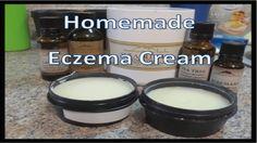 Homemade Eczema Cream