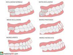La malocclusione dentale, ovvero il non corretto allineamento delle arcate dentali porta conseguenze sulla salute e sulla postura.