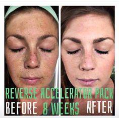 Rodan and Fields Reverse regimen literally reverses sun damage. Premium skin care at your hands! https://jlynnliphart.myrandf.com/Shop/Product/RVAPS01