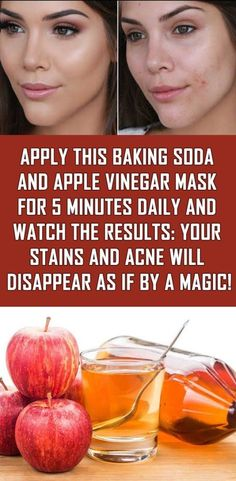 Natural Remedies For Skin Apply This Baking Soda And Apple Vinegar Mask For 5 Minutes Daily And Watch The Results: Your Stains And Acne Will Disappear As If By A Magic! Healthy Tips, Healthy Skin, Healthy Beauty, Healthy Women, Baking Soda And Honey, Apple Vinegar, Cider Vinegar, Vinegar Hair, Skin Care Routine For 20s