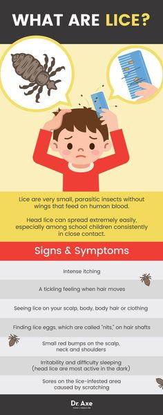 How to get rid of lice: signs & symptoms - Dr. Axe