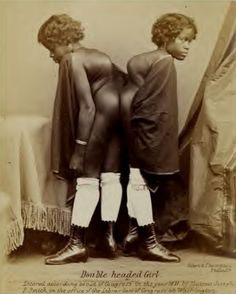 """Millie & Christine McCoy, """"the double-headed nightingale"""" as photographed by Eisenmamm c. Black History Quotes, Black History Books, Black History Facts, Black History Month People, Women In History, Conjoined Twins, Human Oddities, Creepy Photos, Vintage Black Glamour"""