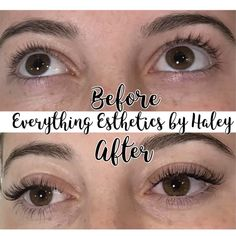 77 Best Everything Esthetics images in 2019 | Todo, Photo, video