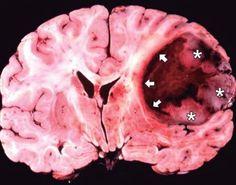 Evidencia sobre uso celulares y cáncer cerebral