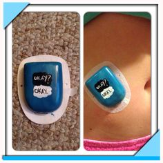 The Fault in Our Stars decorated pod Omnipod Decorations, Diabetes Supplies, Type One Diabetes, Insulin Pump, The Fault In Our Stars, Type 1, Tfios, Google Search, Diy