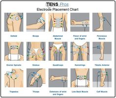 Tens unit electrode placement chart for different sports life
