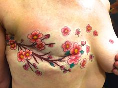 Tattoos for breast cancer survivors who have had a mastectomy or suffer from breast reconstruction scars. Two types of Tattoos Nipples Tattooing and artistic. Tattoos To Cover Scars, Scar Tattoo, Cover Tattoo, Piercing Tattoo, Piercings, Cool Chest Tattoos, Chest Tattoos For Women, Chest Piece Tattoos, Chest Tattoo With Meaning